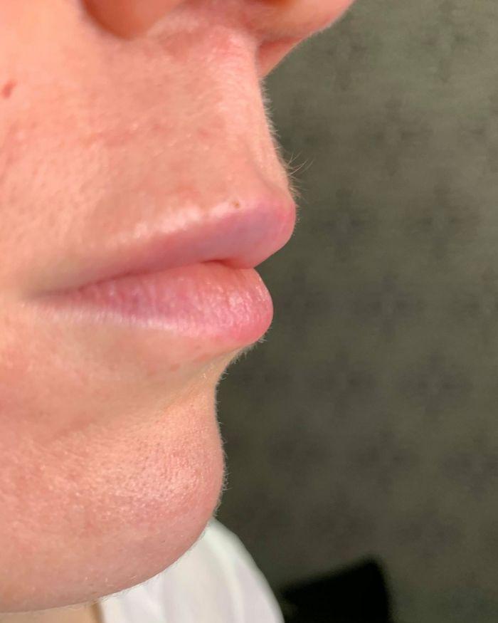 esteettiset pistoshoidot huulet jälkeen